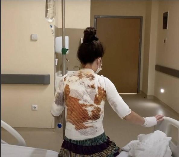 Έκαψε με βραστό νερό στη σύζυγό του επειδή τον ξύπνησε[photos]